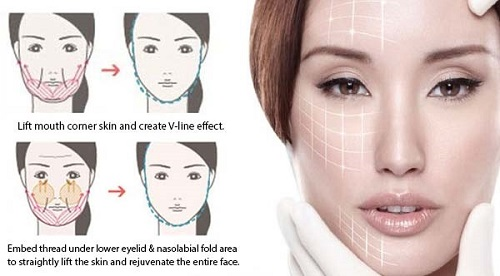 PDO Fine Thread Contouring Training